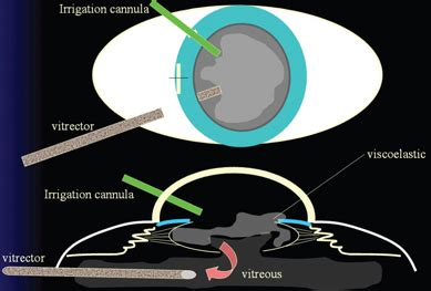 Ophthalmology Management - When the Capsule Breaks