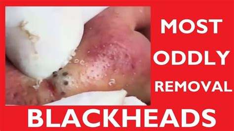The Most Satisfying Blackheads Removal - Satisfying Pimple