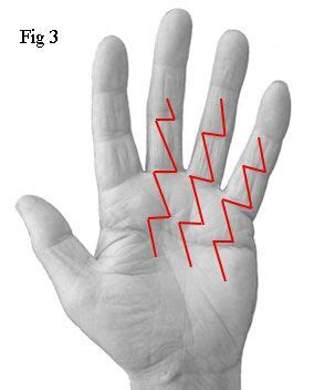 8 Best images about Dupuytren's Contracture on Pinterest