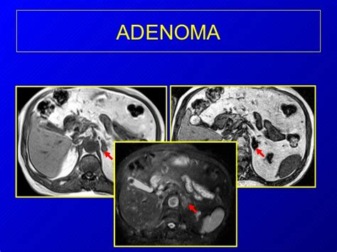 Imaging of the adrenal glands
