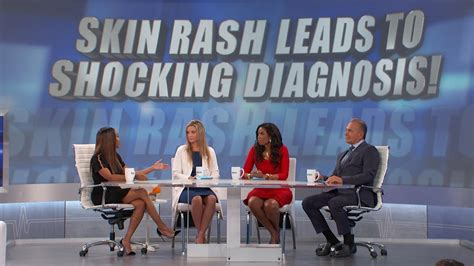 The Skin Rash That Could Be Breast Cancer | The Doctors TV