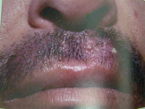 Flashcards - papulosquamous diseases - acanthosis Clinical